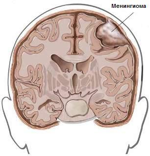 Головного мозга и спинного мозга
