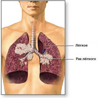 Рак и метастазы лёгких, лечение опухоли