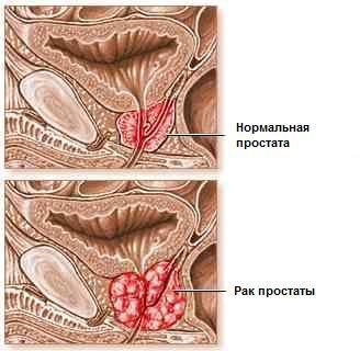 Лечение рака простаты - предстательной железы